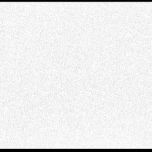10.101 Stræk foer findes i flere farver